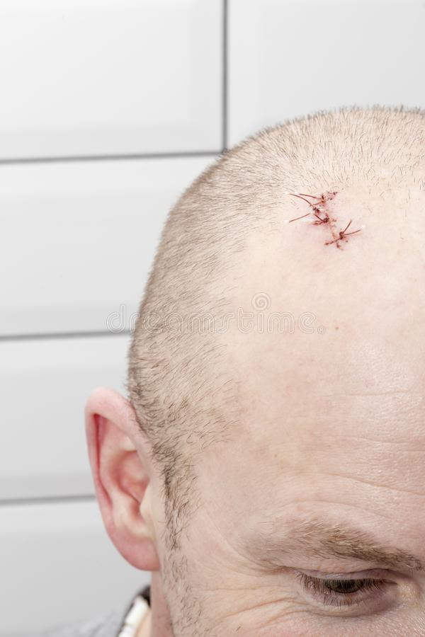 On the man's head there is a wound with sutures, after injury stock photo