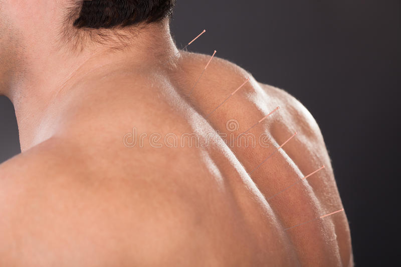 Man with acupuncture needles on back stock photo