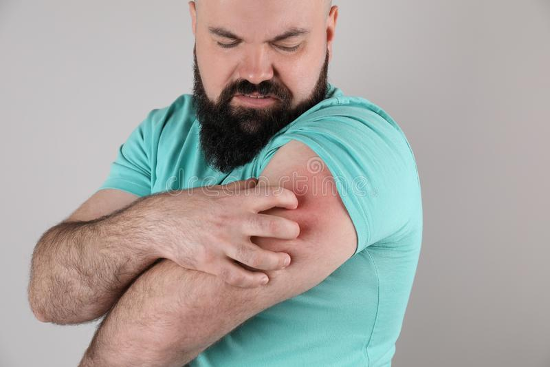 Man with allergy symptoms scratching arm on grey background. Closeup stock photos