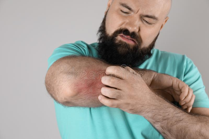 Man with allergy symptoms scratching forearm, closeup. Man with allergy symptoms scratching forearm on grey background, closeup stock photos