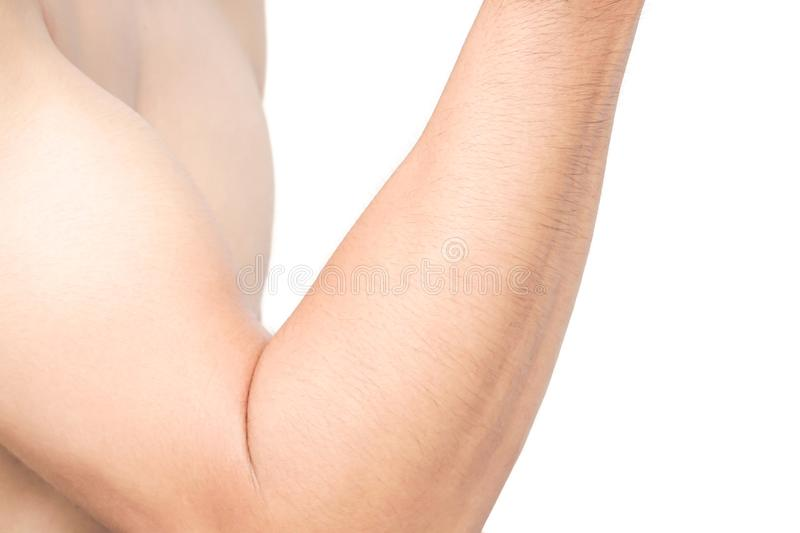Man arm skin with white background, health care and medical concept stock image