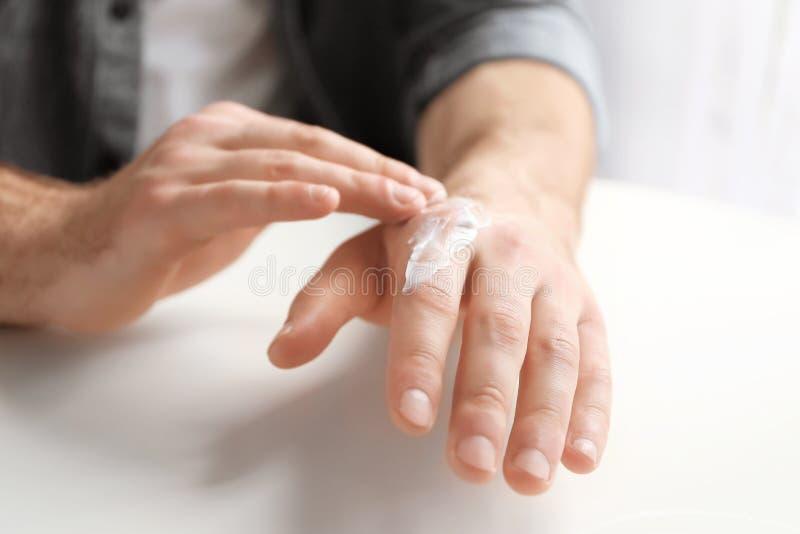 Man att applicera lotion för kakaosmör på handen arkivfoton