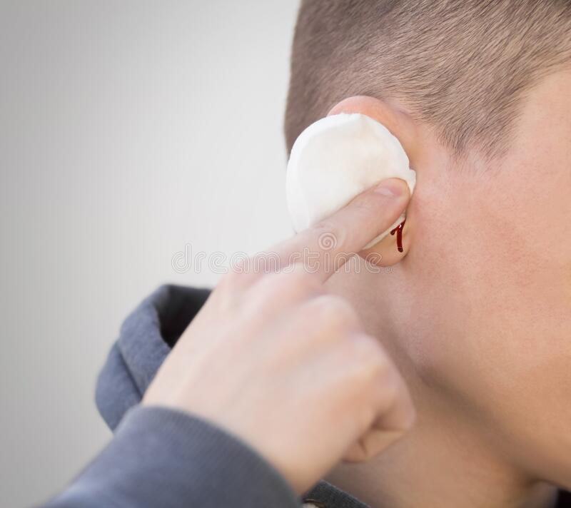 48 Bleeding Ear Photos - Free & Royalty-Free Stock Photos from Dreamstime
