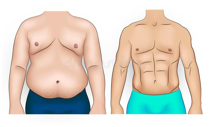 Man body before and after weight loss. Comparison of fat and slim man belly royalty free illustration