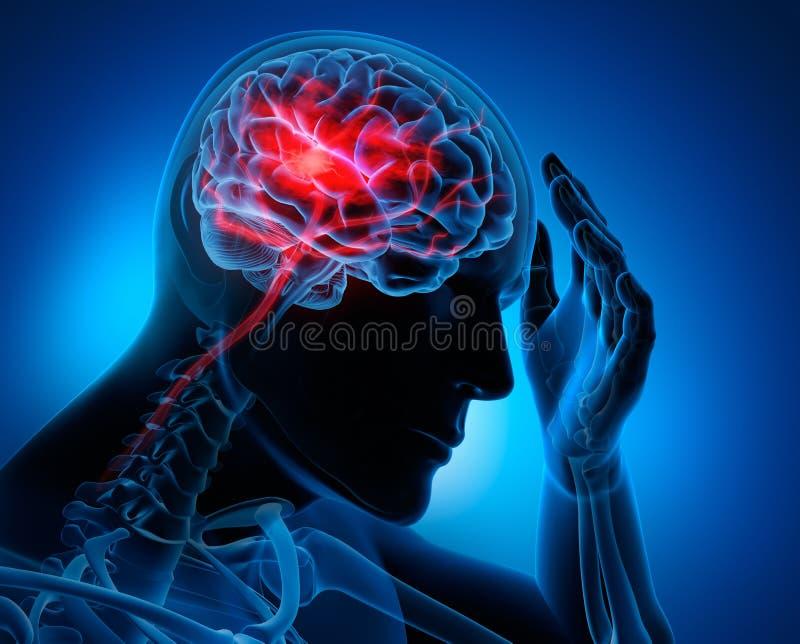 Man with brain stroke symptoms. Medical illustration of brain stroke symptoms xray 3d rendering royalty free illustration