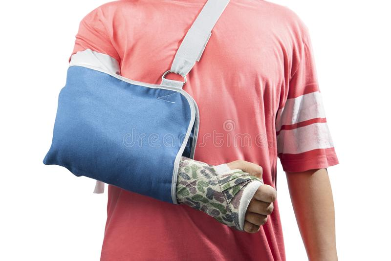 Man with broken bone arm using cast and sling for treatment royalty free stock photography
