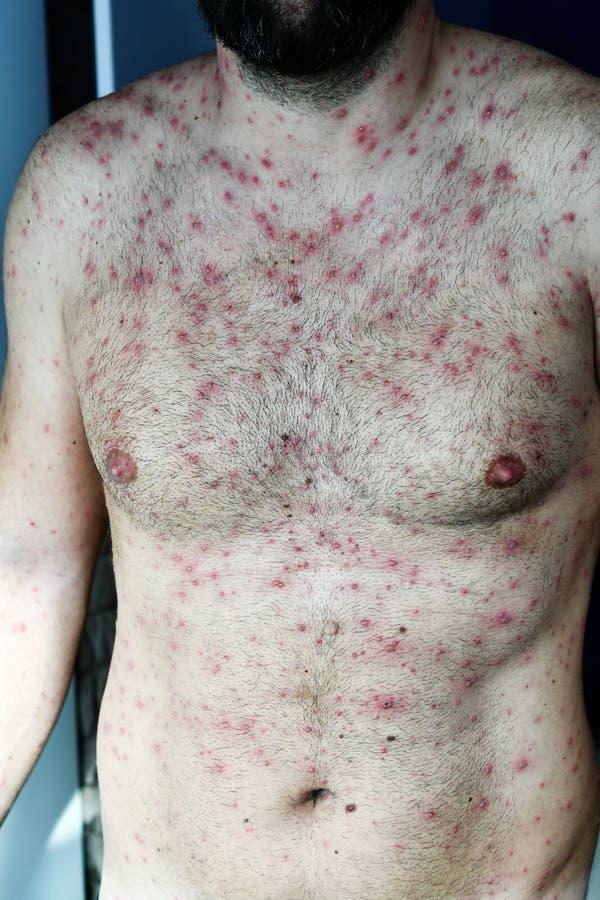 Man with chickenpox. Bearded Man with chickenpox ,varicella virus stock photo