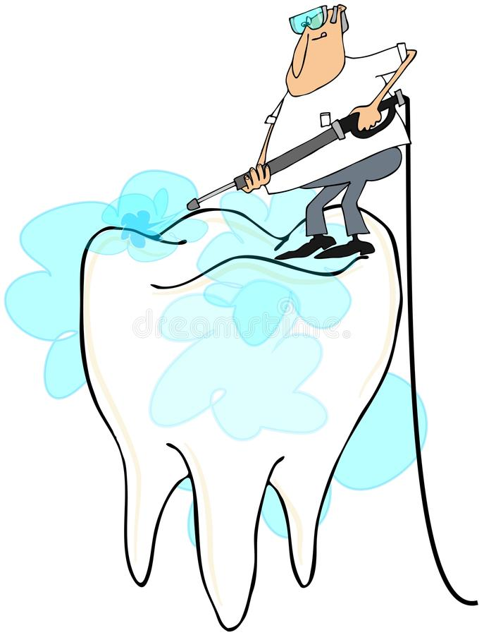 Man cleaning a large tooth. Illustration depicting a man using a pressure washer to clean a large molar royalty free illustration