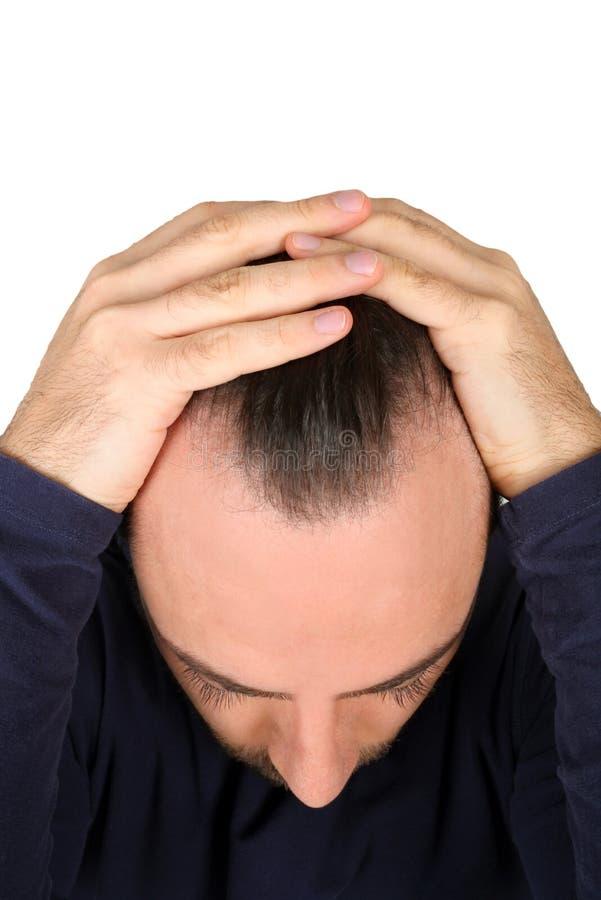 Man controls hair loss. Caucasian young man controls hair loss stock photos