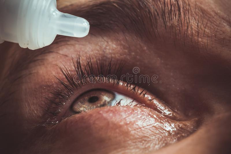 A man drips open human eye with bright red arteries drops to improve vision close up. irritation and redness of the eyeball. Pupils, iris, eyelashes in macro stock photography