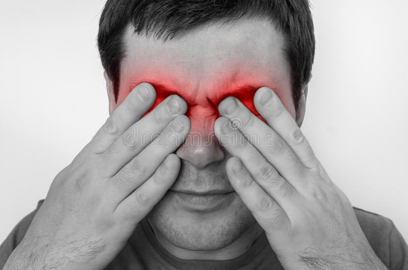 Man with eyes pain is holding his aching eyes royalty free stock image