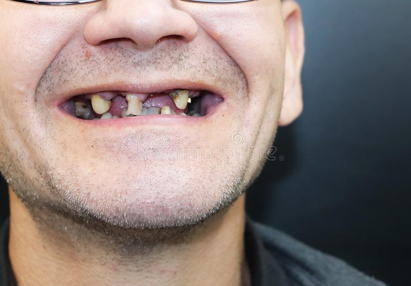 The man has rotten teeth, teeth fell out, yellow and black teeth hurt. Poor teeth condition, erosion, caries. The doctor prepares stock photos