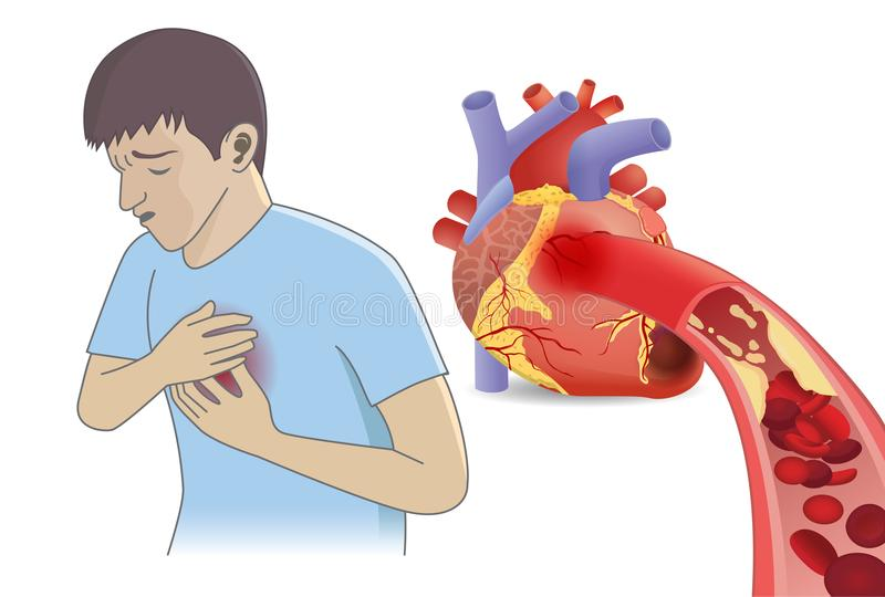 Man have chest pain from blood cell can`t flow into heart by fatty. Illustration about Coronary Artery Disease and medical concept vector illustration