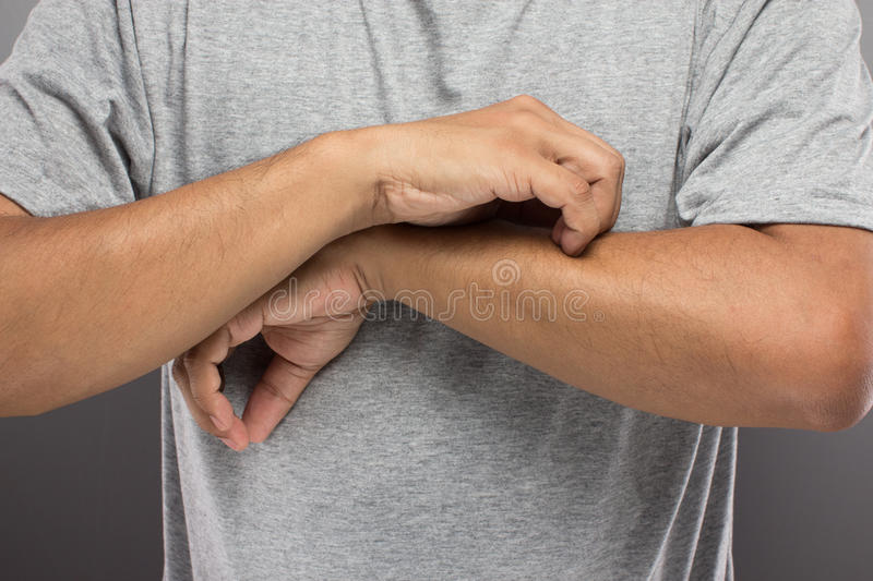 The man have problem skin, iching his arm so much. royalty free stock photos