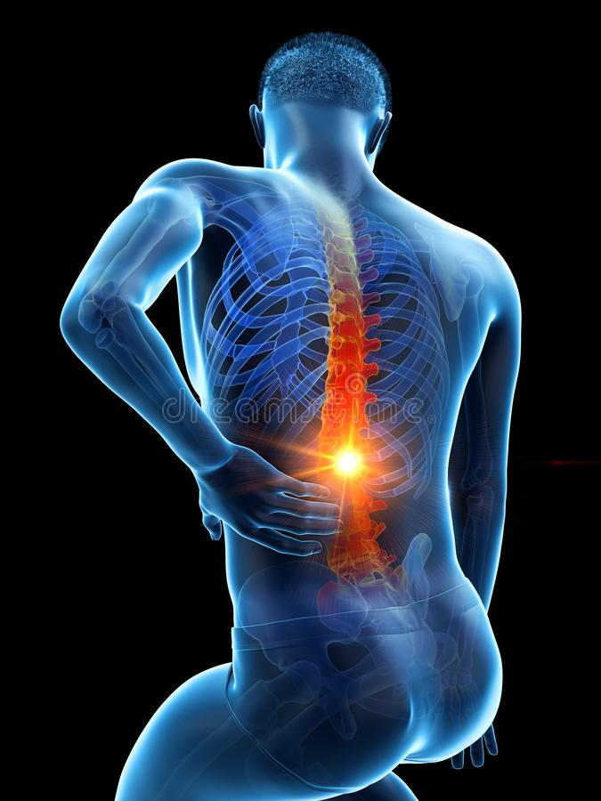 A man having acute back pain. 3d rendered medically accurate illustration of a man having acute back pain royalty free illustration