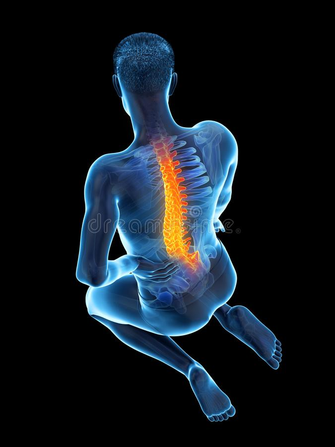 A man having acute back pain. 3d rendered medically accurate illustration of a man having acute back pain stock illustration