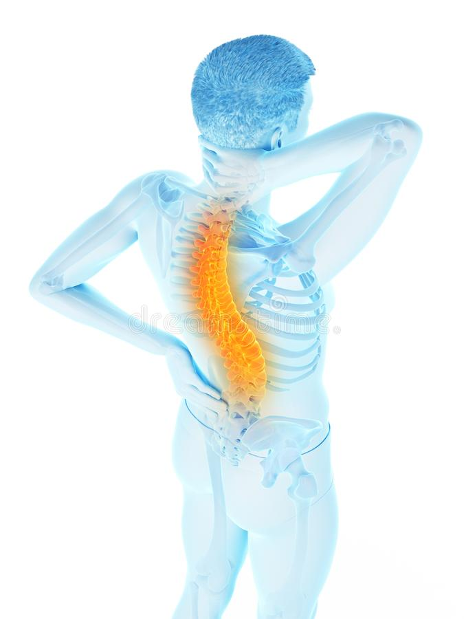 A man having acute back pain. 3d rendered medically accurate illustration of a man having acute back pain vector illustration