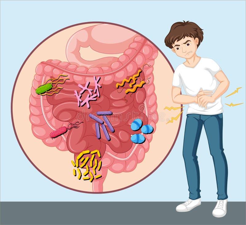 Man having food poisoning. Illustration vector illustration