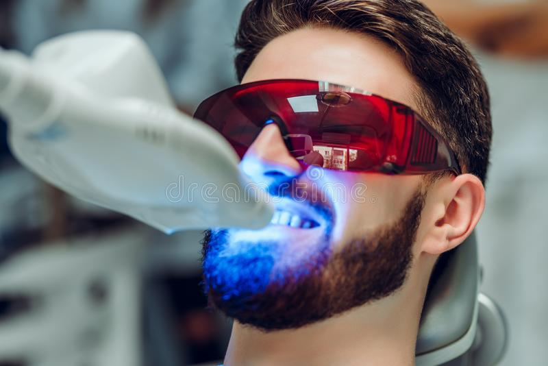 Man having teeth whitening by dental UV whitening device,dental assistant taking care of patient,eyes protected with glasses. Whitening treatment with light stock photo