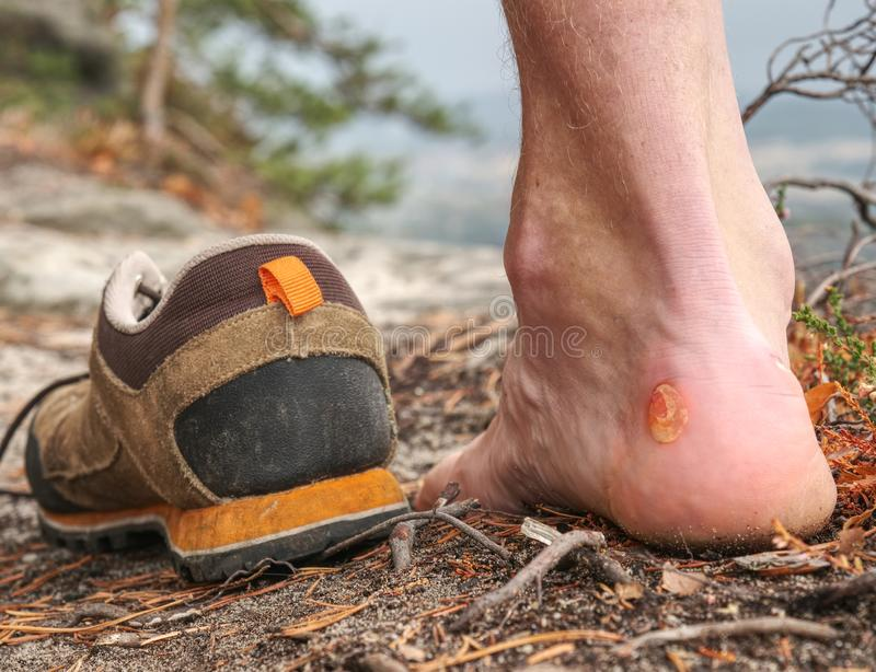 Man hiker sweaty legs with horrible painful callus resting on peak stock photo