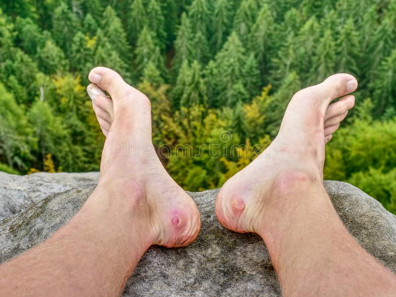 Man hiker take off sweaty boots on mountain rocks Beautiful weather stock photos