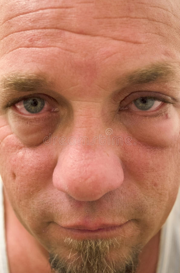 Man With Itchy Watering Eyes Caused By Allergies. Close up photo of a man with red, itchy, irritated, swollen eyes from caused from allergies royalty free stock images