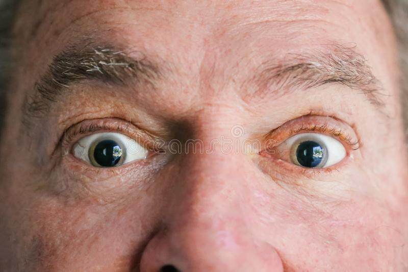 Two dilated eyes. A man just had his eyes dilated by an ophthalmologist, or eye doctor, as part of a full examination. Eye doctor was looking for cataracts royalty free stock images