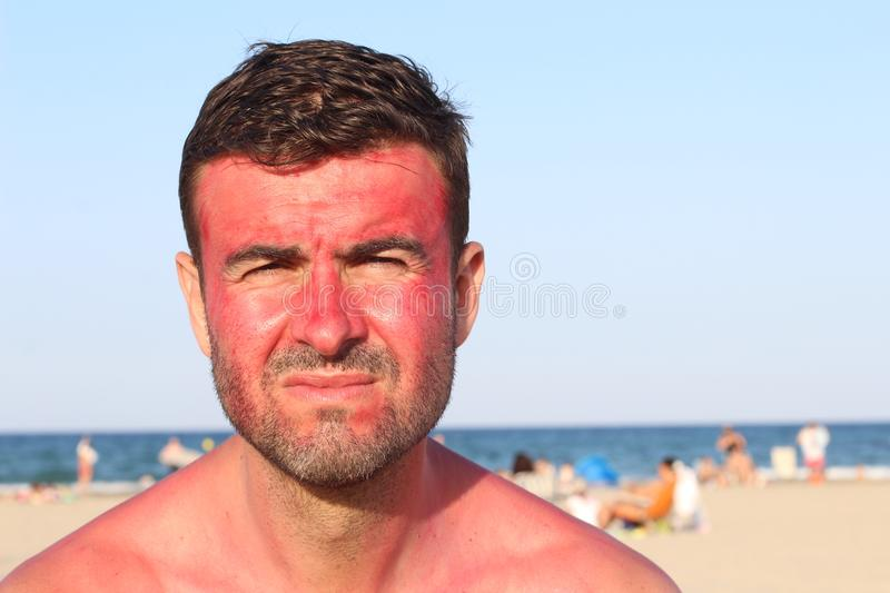Man with lost of redness after suntanning.  royalty free stock image