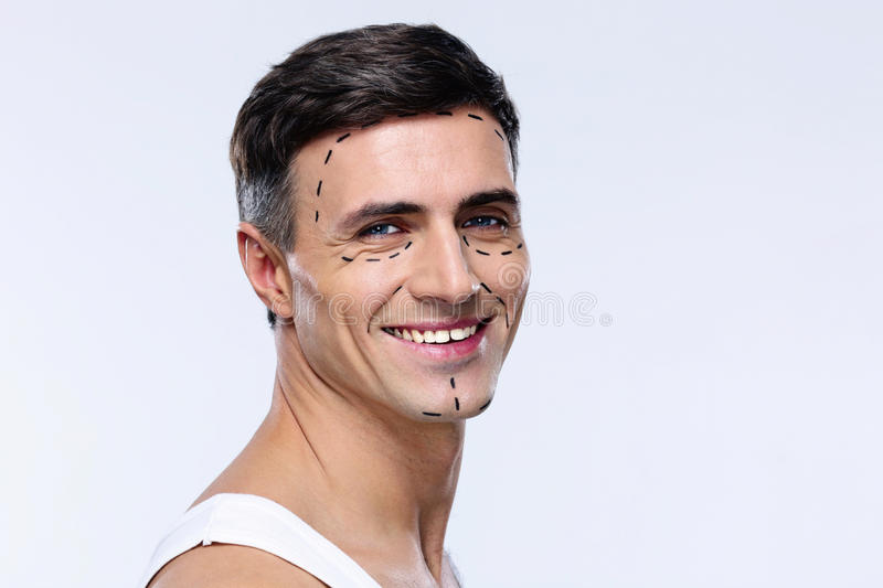 Man marked with lines for plastic surgery stock photo