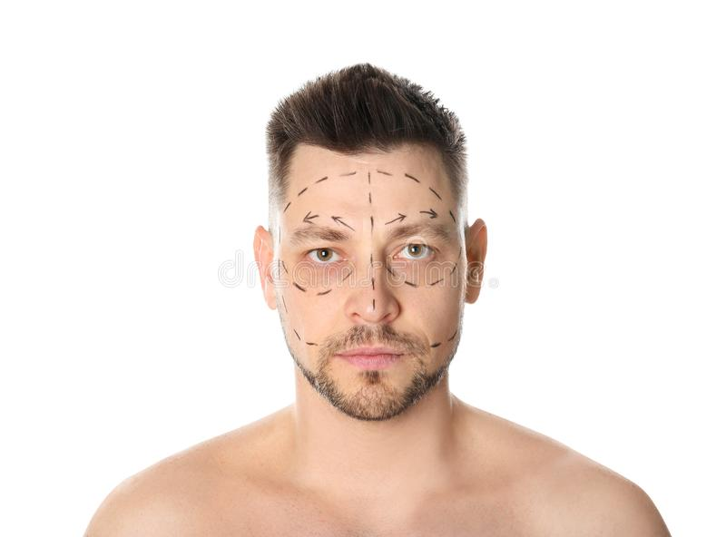Man with marks on face for cosmetic surgery operation stock image