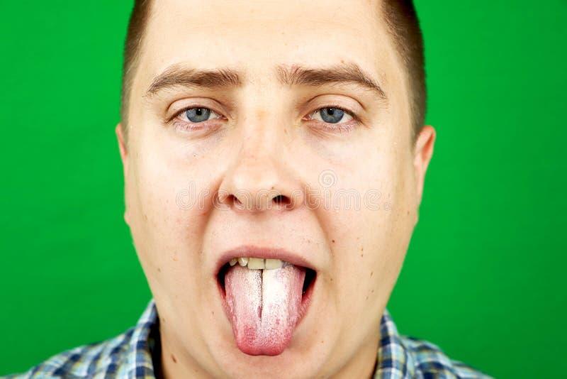 Man med dålig andedräkt för Candidaalbicans på tungan royaltyfri bild