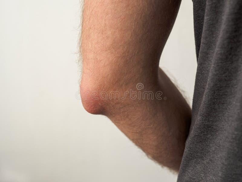 Man med den vehy smärtsamma armbågen royaltyfri bild