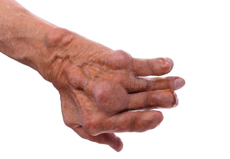 Man med en diagnos av polyarthritis royaltyfri bild