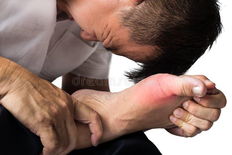Man med smärtsam och inflammerad gikt på hans fot, runt om stortåområdet arkivbilder