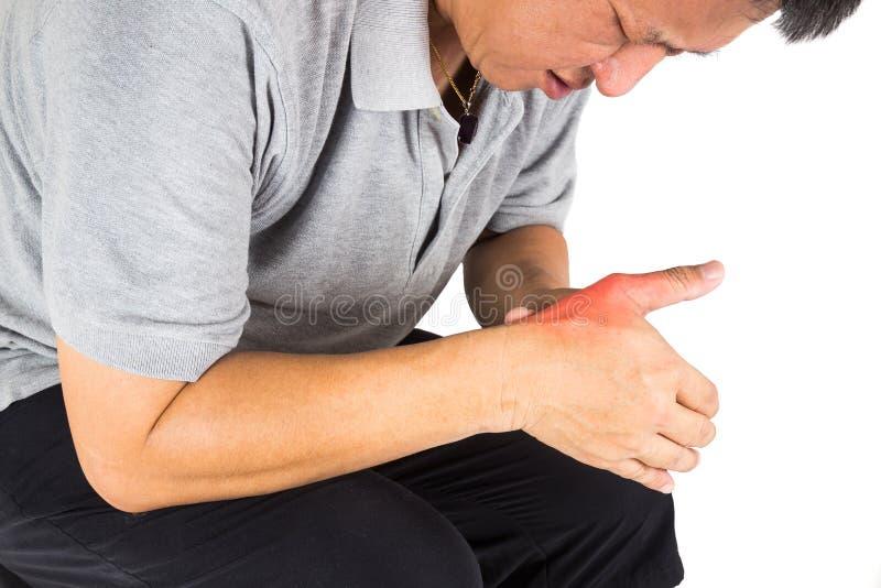 Man med smärtsam och inflammerad gikt på hans hand runt om tummeområdet arkivbilder