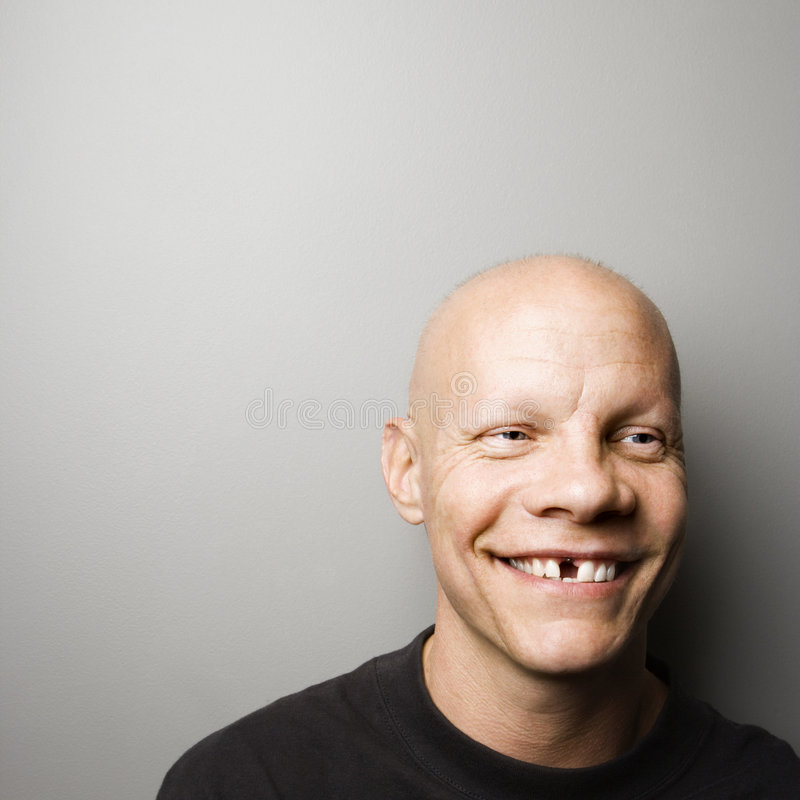 Man with missing tooth. Portrait of mid-adult Caucasian male with missing tooth stock images