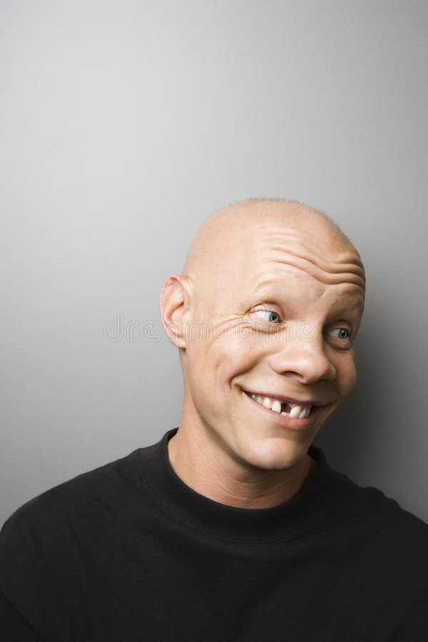 Man with missing tooth. Portrait of mid-adult Caucasian male with missing tooth stock photo