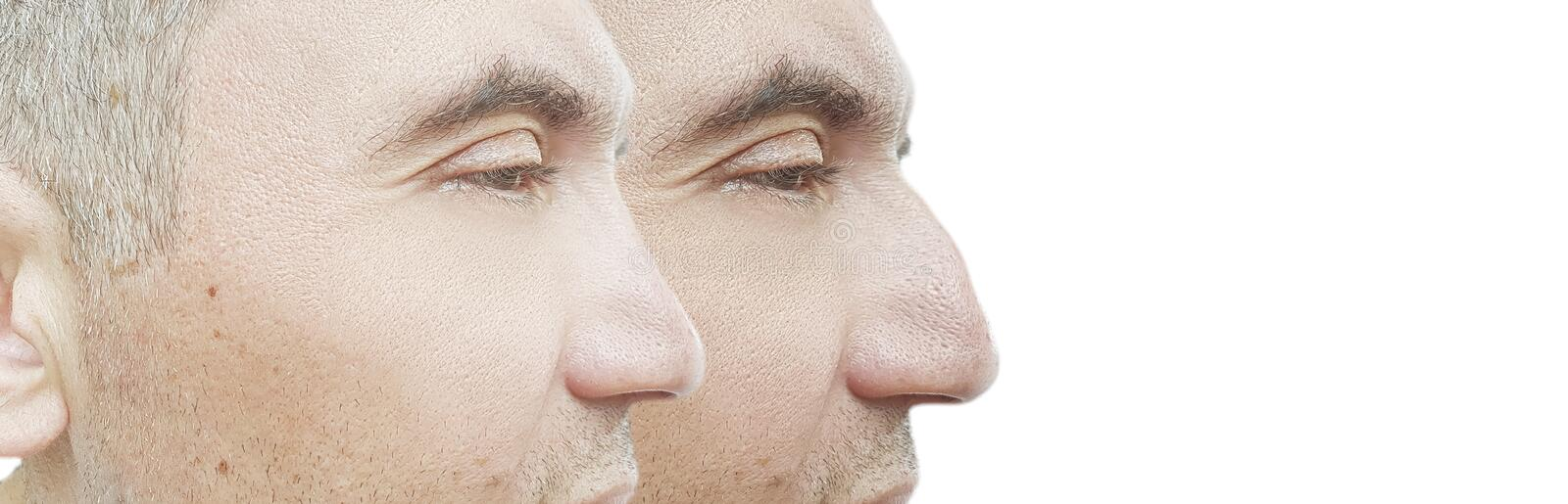 Man nose hump before and after treatment comparative. Man nose hump before and after treatment collage comparative royalty free stock photo