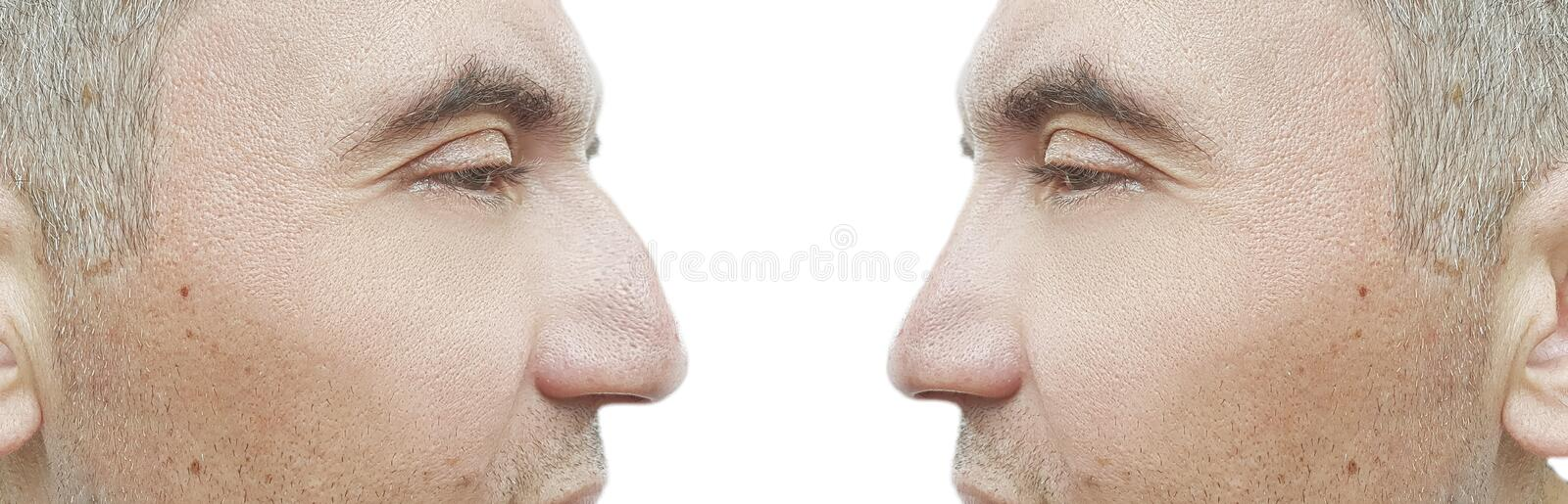 Man nose hump before and after problem treatment comparative. Man nose hump before and after treatment collage comparative problem stock photos