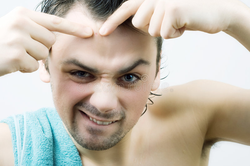 Man picking pimple. Close up stock photo