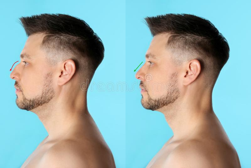 Man before and after plastic surgery royalty free stock photo