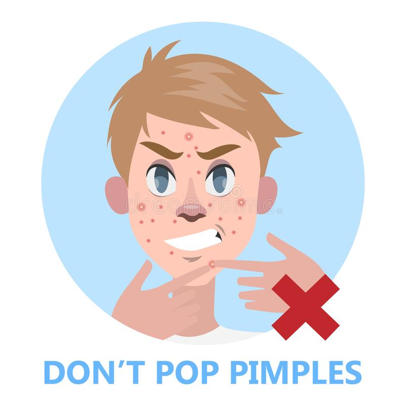 Man pop pimple on the acne face. Popping acne is forbidden. Guy ing his face. Isolated flat vector illustration vector illustration