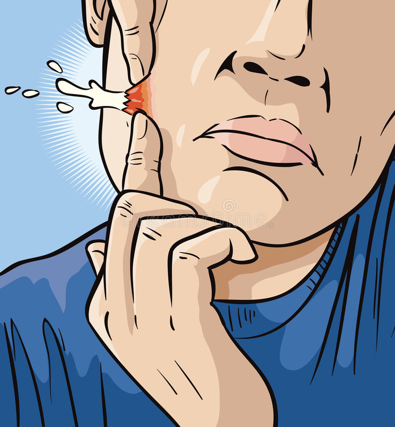 Man Popping Zit. Drawing of a man popping a zit royalty free illustration