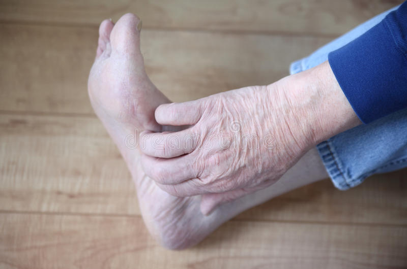 Download Man with rash on foot stock image. Image of jeans, irritation - 28505233