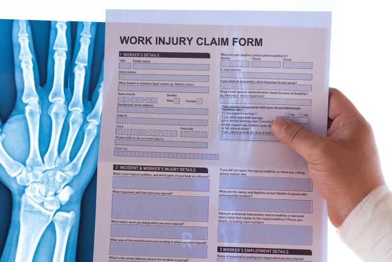 Man reading a work injury claim form with a wrapped hand on top of an X-ray film stock images