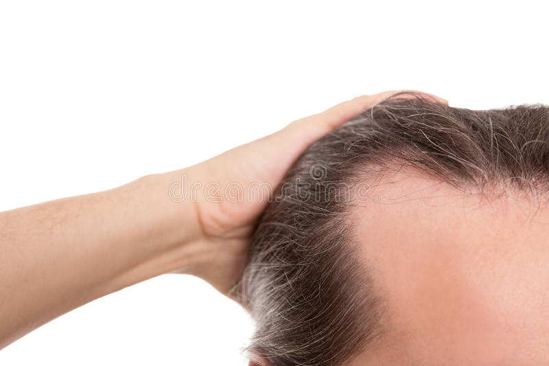 Man with receding hairline, closeup isolated on white, concept a. Lopecia and baldness stock images
