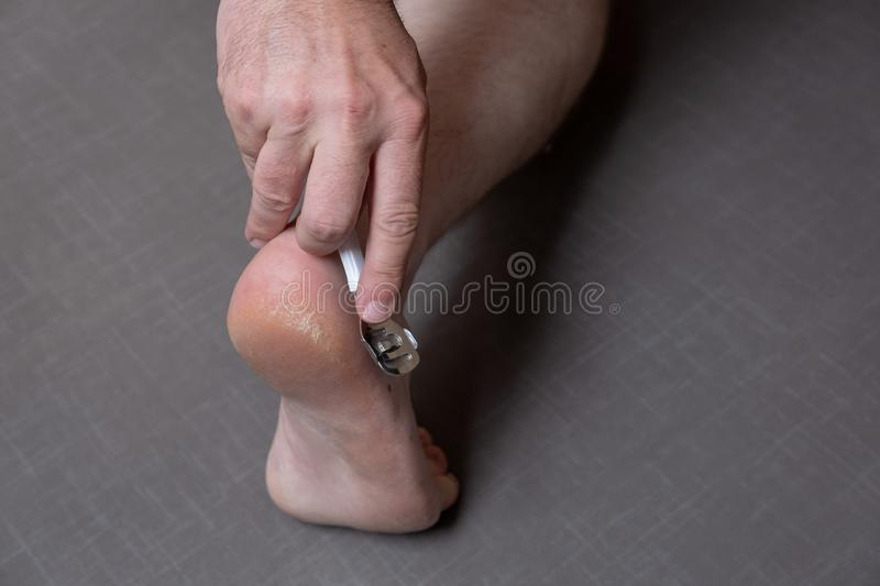 Man removing corn, callus from his feet using a razor file, masculine skin care, skin disease, fungal infection, skin stock photos
