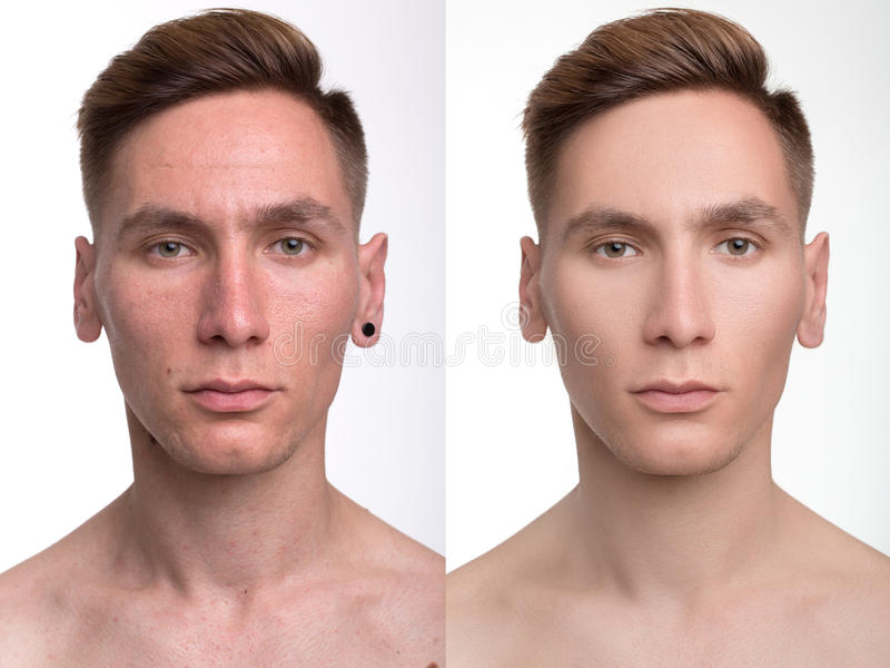 Proper And Valuable Knowledge About tothessough man-retouch-face-handsome-cosmetic-operation-anti-aging-therapy-removal-acne-retouching-74277181
