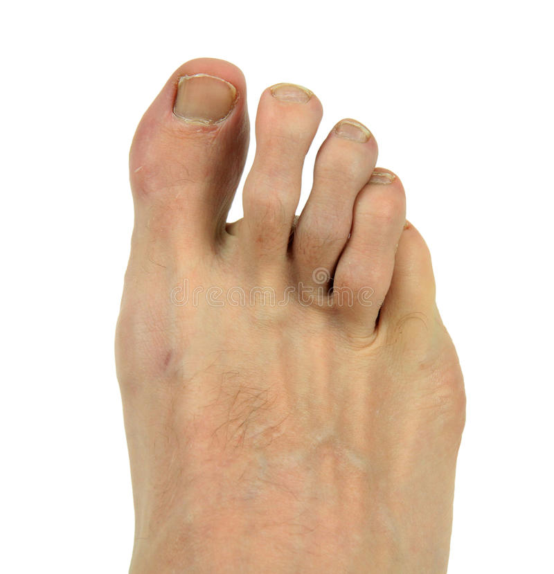 Download Man's Foot stock photo. Image of white, digits, flesh - 29070554