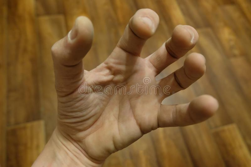A man`s hand against a parquet background. The fingers are bent in a strange way. A man`s hand against a parquet background. The fingers are bent in a strange stock photo